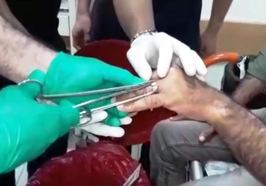 Parmağa sıkışan yüzük kesilerek çıkarıldı