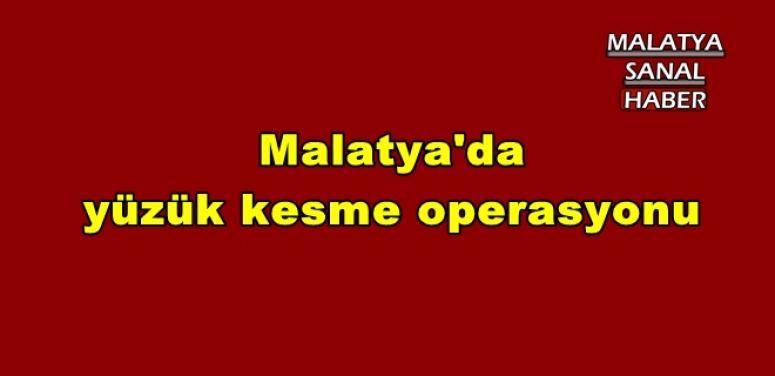 Malatya'da yüzük kesme operasyonu