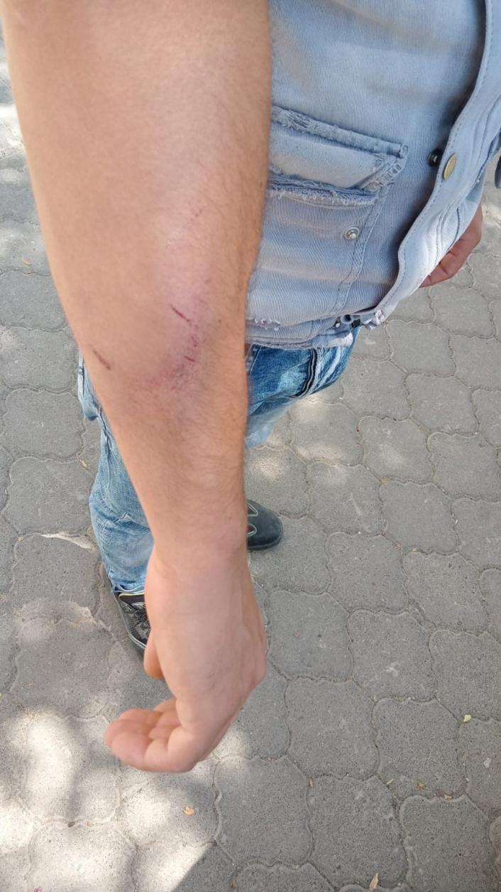 Akedaş elektrik dağıtım personeline saldırı