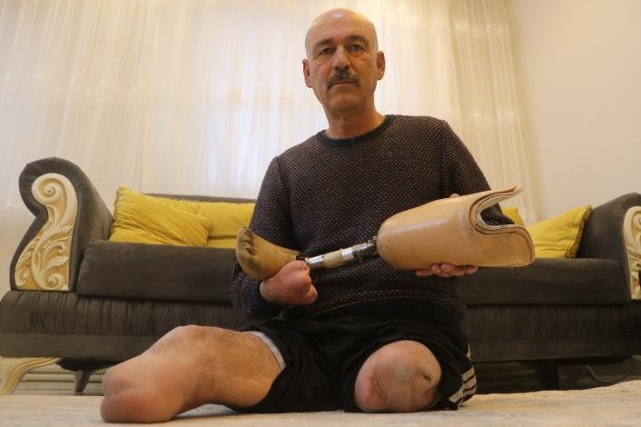 Defalarca ameliyat oldu, iki bacağını bir elini kaybetti, yine de hayata küsmedi