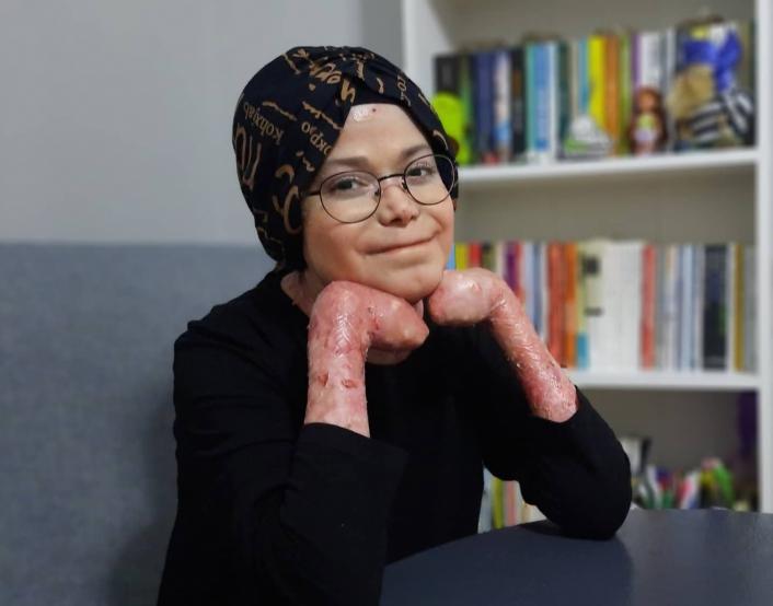 Kelebek Hastası Büşra, sanatsal hobilerle ilgilenerek hastalığına farkındalık oluşturuyor