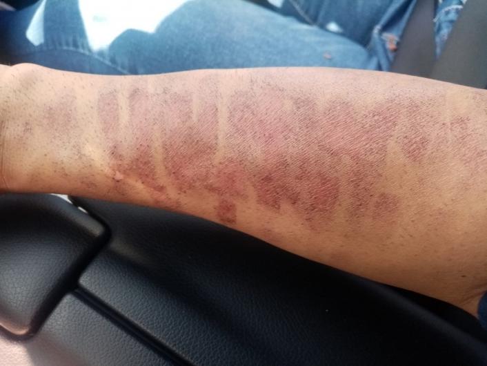 Lazer epilasyon yaptırdı, kolları yandı